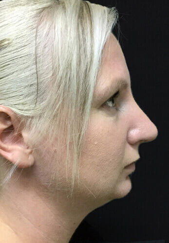 nose job before and afters Brisbane surgeon