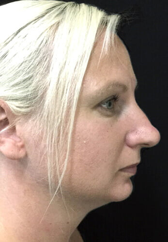 rhinoplasty before and after photo review Brisbane
