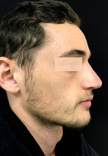 Rhinoplasty surgery Brisbane