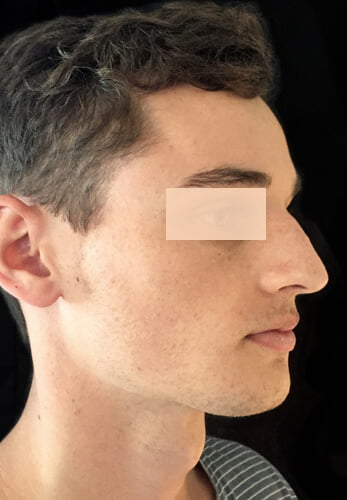 rhinoplasty nose job Brisbane surgeon