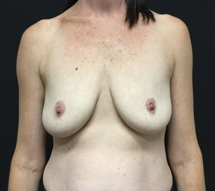 Brisbane breast augmentation mastopexy lift