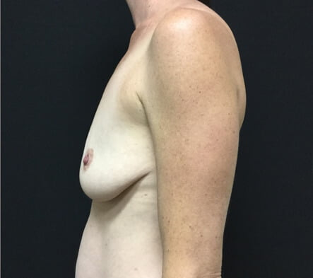 Breast augmentation and mastopexy recommended surgeon Brisbane