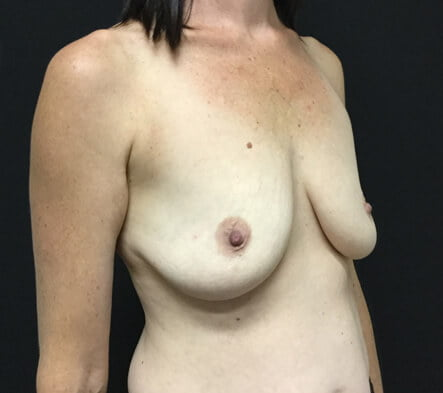 Before breast lift augmentation Brisbane Dr Sharp