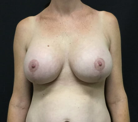 Brisbane breast augmentation boob job mastopexy lift