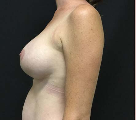 Breast augmentation and lift reviews Brisbane surgeon