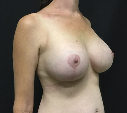 Dr Sharp Brisbane breast augmentation and mastopexy lift