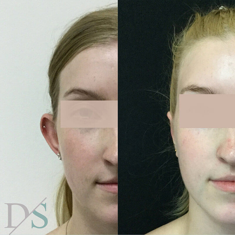 before and after ear otoplasty Dr Sharp plastic surgeon Brisbane
