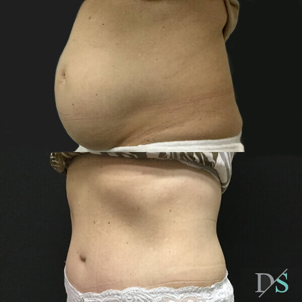 post partum abdominoplasty surgeon