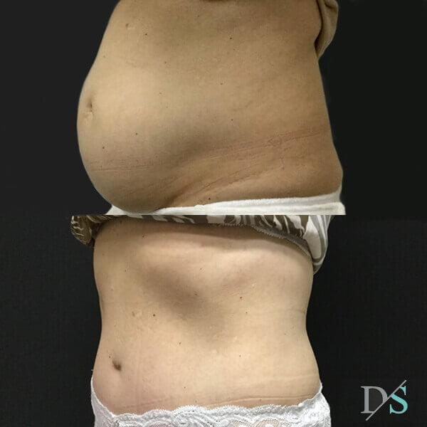 post partum abdominoplasty surgeon
