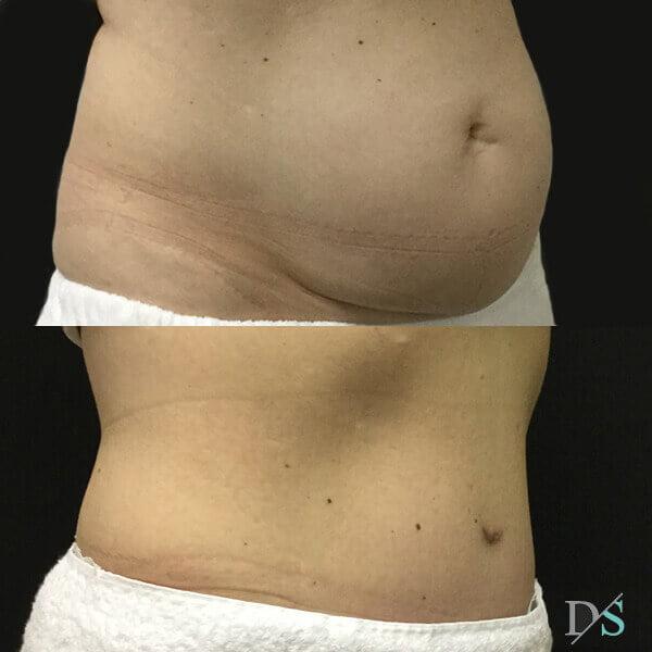 Brisbane post pregnancy tummy tuck surgeon