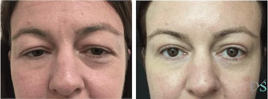 Before and after blepharoplasty eyelid reduction surgery Brisbane Ipswich 1