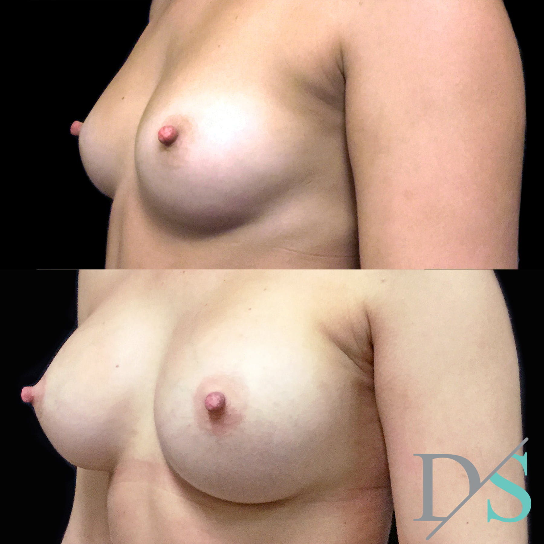 breast augmentation surgeon Brisbane