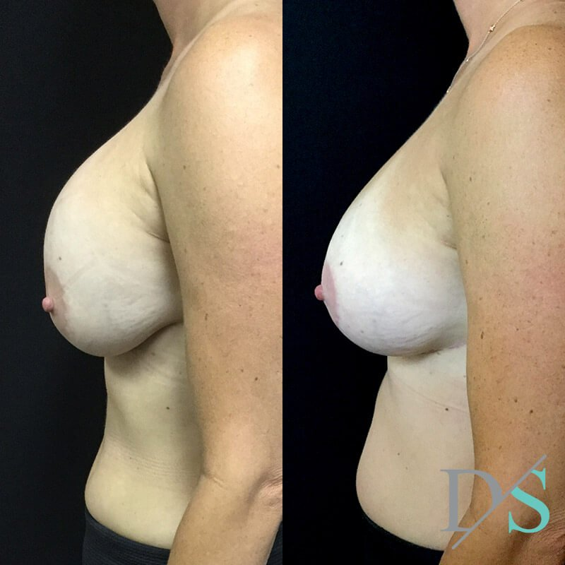 Brisbane breast implant replacement