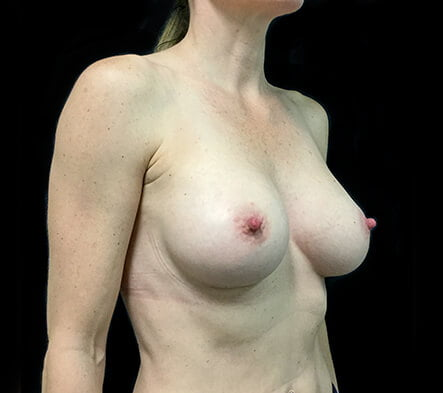 which breast augmentation Brisbane and Ipswich surgeon
