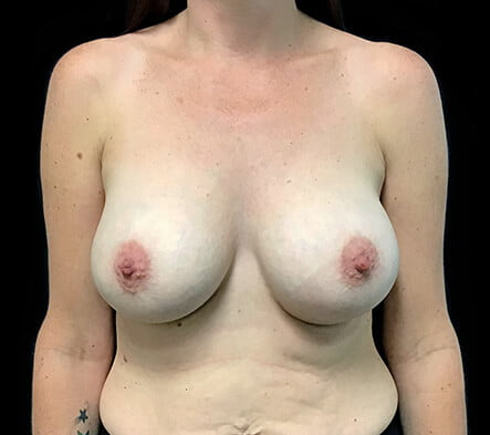 best breast augmentation plastic surgeon Brisbane photos