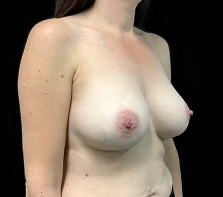 boob job surgeon Brisbane and Ipswich before and after
