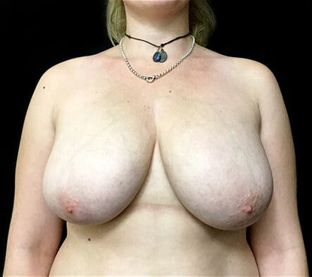Recommended Brisbane and Ipswich plastic surgeons for breast reduction
