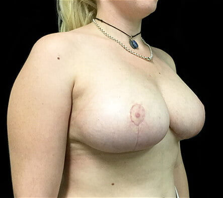 Recommended Ipswich plastic surgeon breast reduction