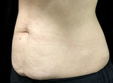 Looking for recommendations tummy tuck abdominoplasty surgeons Brisbane and Ipswich
