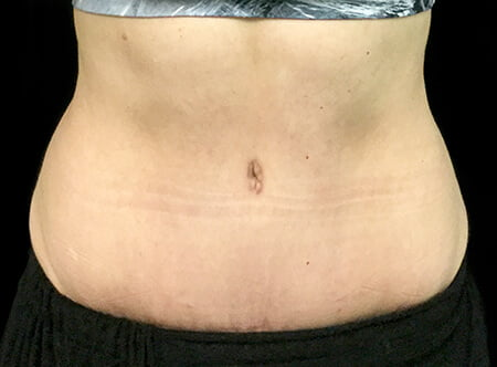 Abdominoplasty surgery in Brisbane and Ipswich