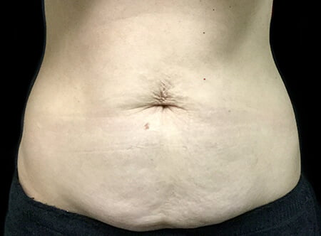 Qualified plastic surgeons in Brisbane for abdominoplasty