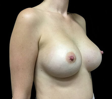 breast augmentation Brisbane which surgeon Dr Sharp