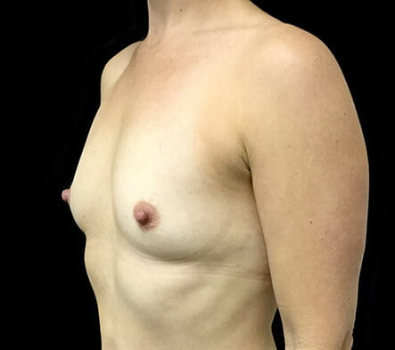 Ipswich good plastic surgeon photos Dr Sharp breast augmentation