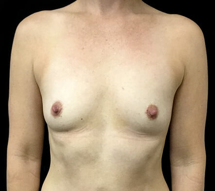 Breast augmentation recommended surgeon Brisbane