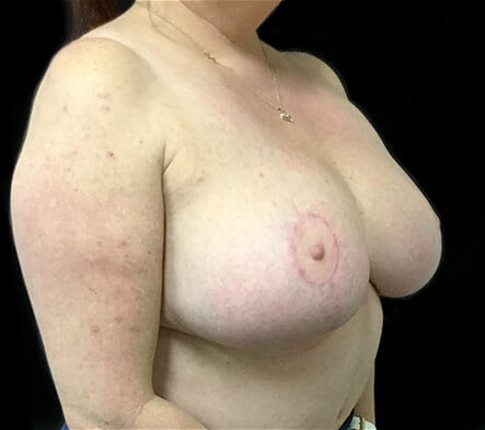 Brisbane breast reduction plastic surgeon