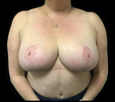 Brisbane breast reduction surgeon Dr David Sharp
