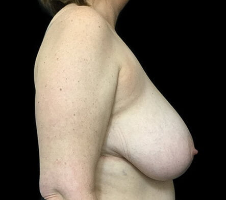 Recommended Brisbane plastic surgeon breast reduction