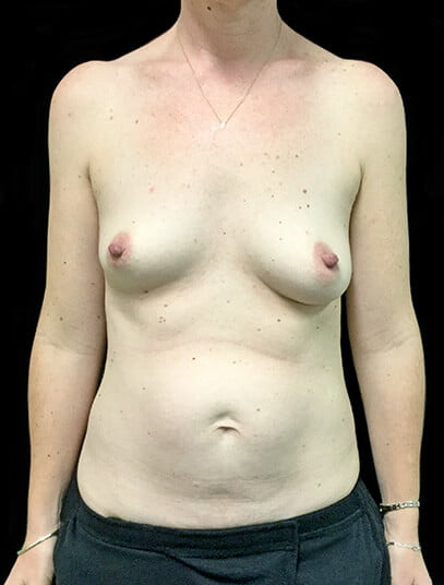 Breast augmentation abdominoplasty surgeon photos Brisbane and Ipswich
