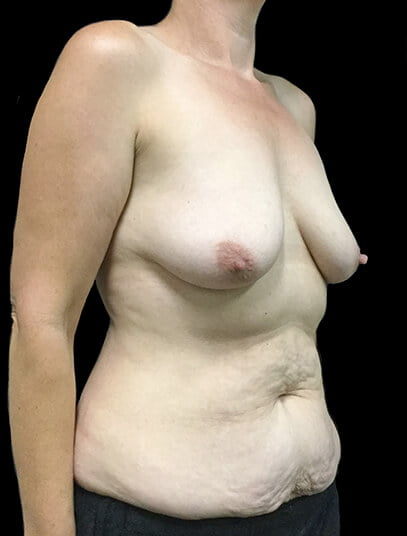 boob job mastopexy and tummy tuck Brisbane and Ipswich Dr Sharp