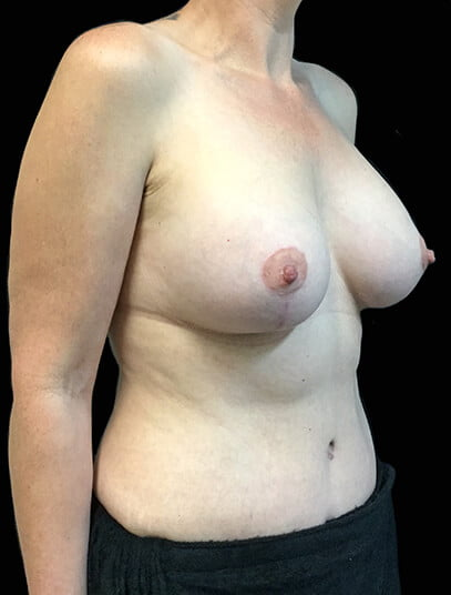 photos Dr Sharp breast augmentation mastopexy lift and tummy tuck