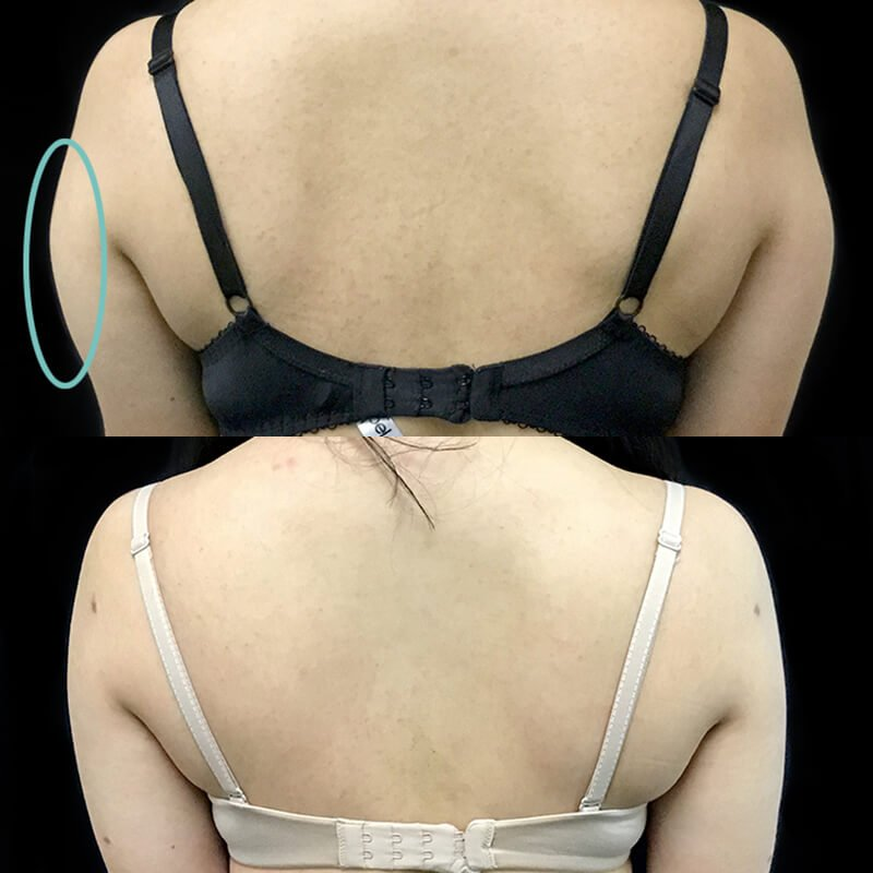 liposuction photo Brisbane plastic surgeon