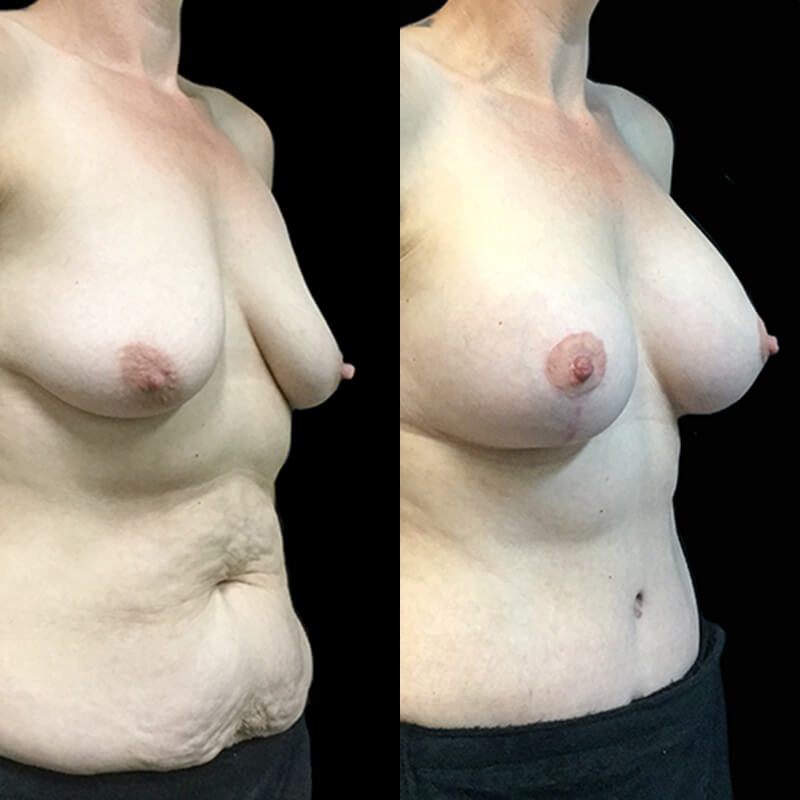 Breast augmentation and lift with abdominoplasty Dr David Sharp