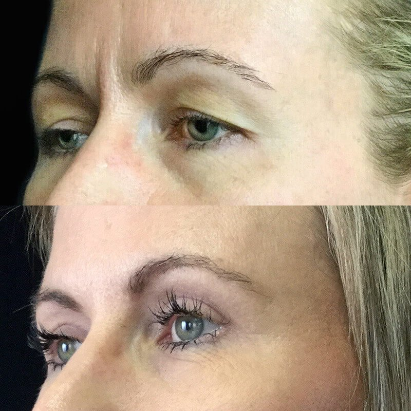 Eyelid Reduction | Dr  David Sharp | Blepharoplasty