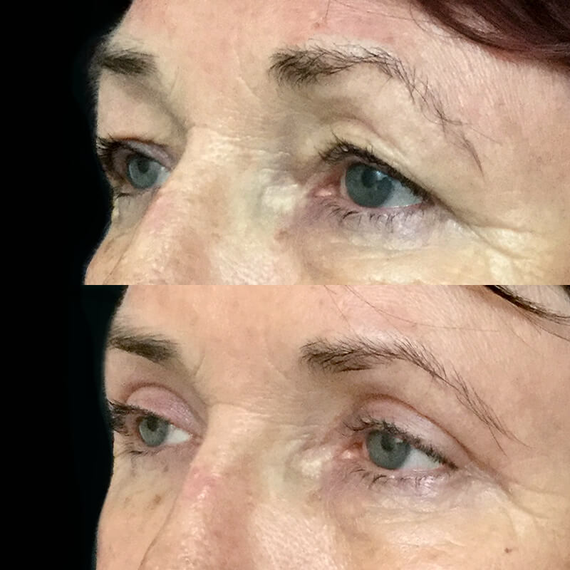 Eyelid Reduction   Dr  David Sharp   Blepharoplasty