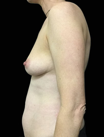 Abdominoplasty surgeon Brisbane