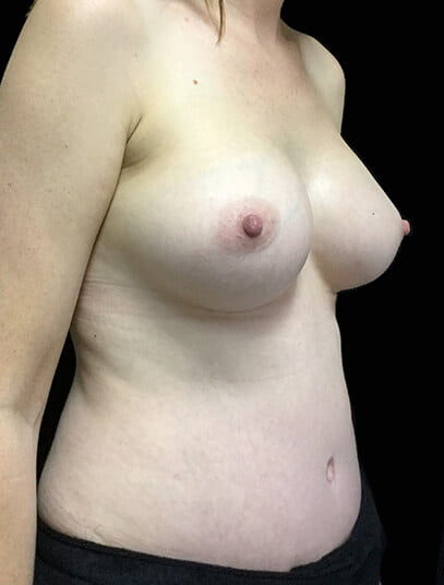Dr David Sharp breast augmentation and lift results photos reviews