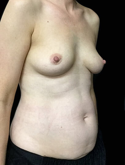 Brisbane breast augmentation and lift reviews surgeon