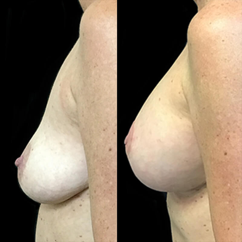Dr David Sharp breast augmentation surgeon Brisbane and Ipswich