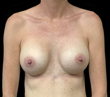 after breast augmentation East Brisbane cosmetic surgery