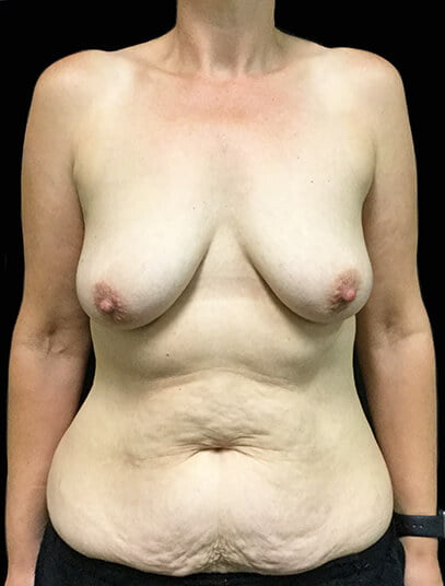 Specialist surgeon for abdominoplasty and breast lift, augmentation Brisbane