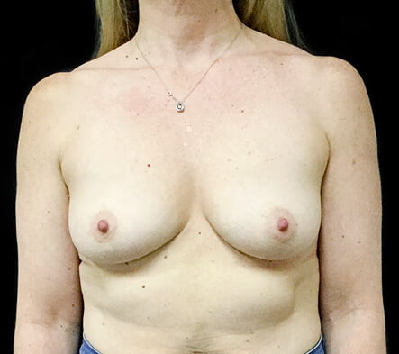 Breast implants Brisbane and Ipswich surgeon reviews