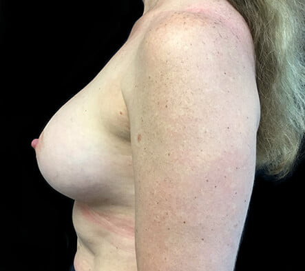Dr David Sharp breast augmentation results reviews