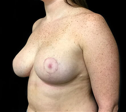 Brisbane breast reduction surgeon