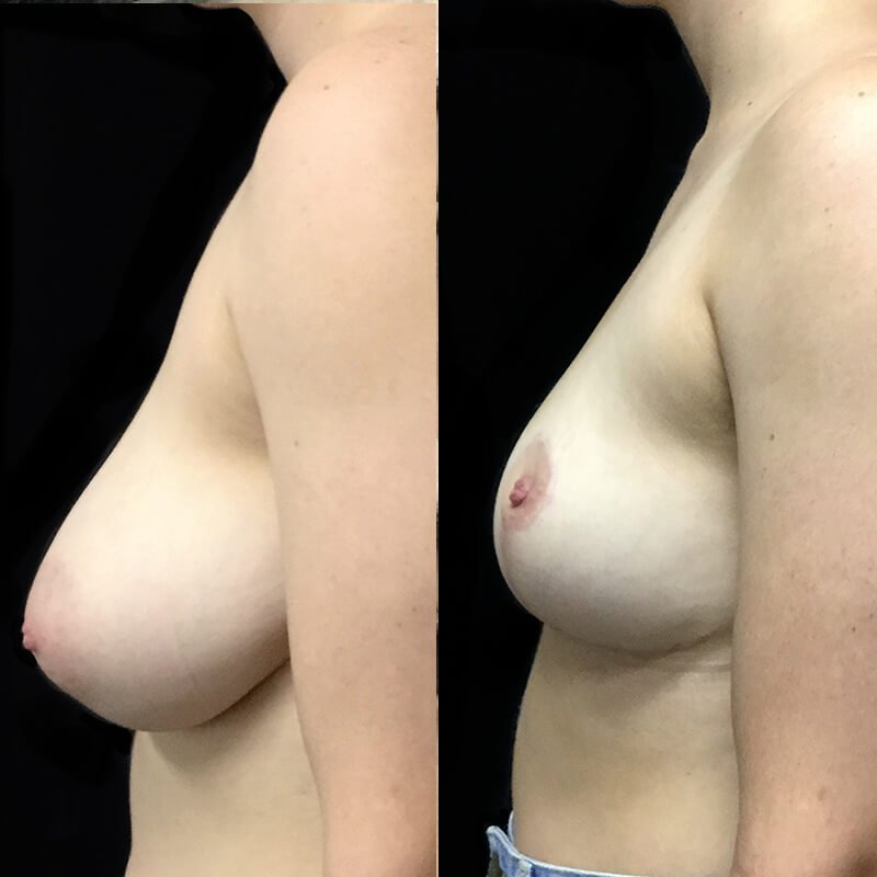 breast lift and reduction surgeon recommendation Brisbane and Ipswich