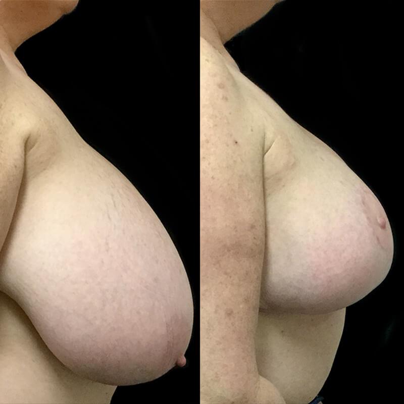 best breast reduction surgeons in Brisbane and Ipswich