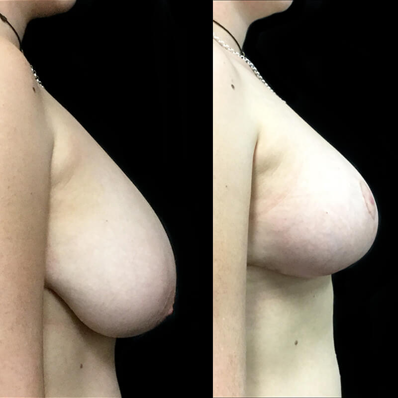 breast reduction surgeon Brisbane